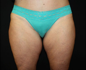 Liposuction Before & After Patient #23216