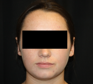 Otoplasty Before & After Patient #21535