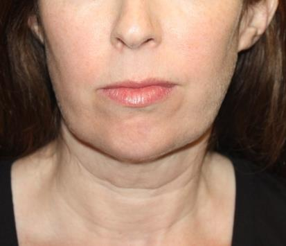 Kybella Before & After Patient #19825