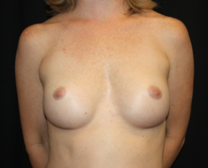 Nipple Revision Before & After Patient #20877