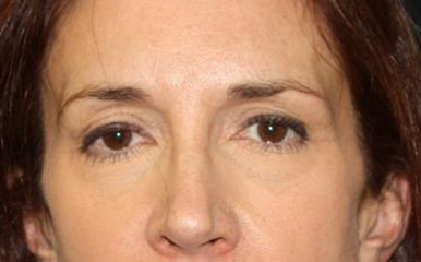 Brow Lift Before & After Patient #21114