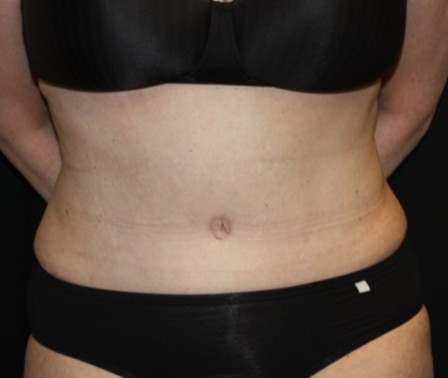 Liposuction Before & After Patient #23232