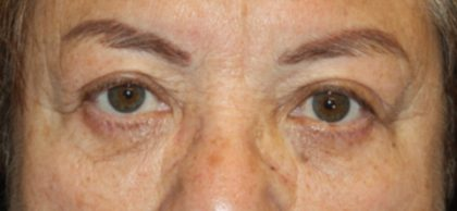 Brow Lift Before & After Patient #21115