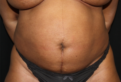 Liposuction Before & After Patient #23221