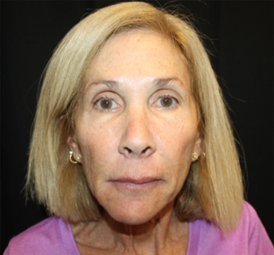 Facelift Before & After Patient #23575