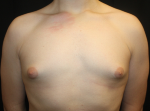 Gynecomastia Before & After Patient #23460