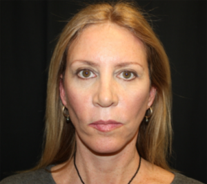 Facelift Before & After Patient #23556
