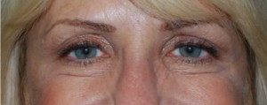 Botox and Dysport Before & After Patient #24816