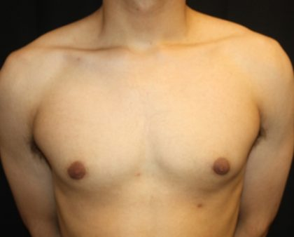 Gynecomastia Before & After Patient #23455