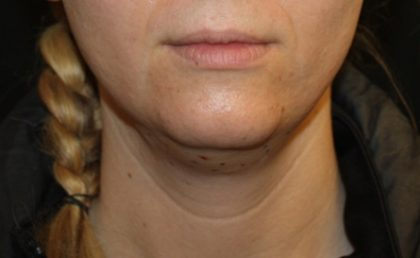 Kybella Before & After Patient #19907