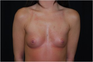 Breast Augmentation - Round Silicone Implants Before & After Patient #26286