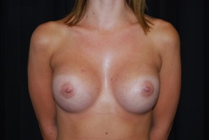 Breast Augmentation - Round Silicone Implants Before & After Patient #26295