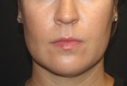 Kybella Before & After Patient #25350