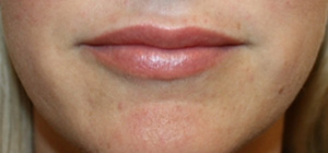 Lip Augmentation Before & After Patient #27156