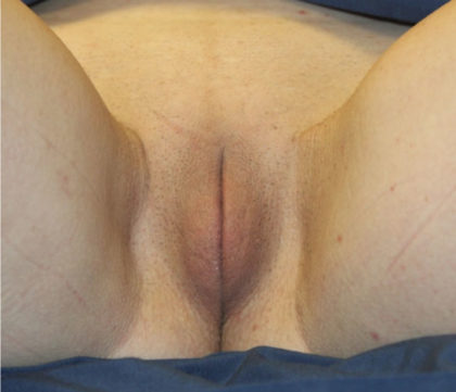 Labiaplasty Before & After Patient #27153