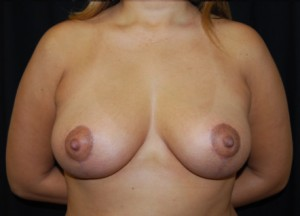 Breast Lift Before & After Patient #27341