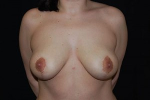 Breast Lift Before & After Patient #27352