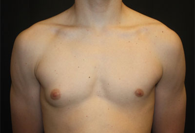 Gynecomastia Before & After Patient #27185