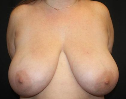 Breast Reduction Before & After Patient #27555