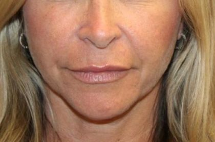 Injectable Fillers Before & After Patient #27643