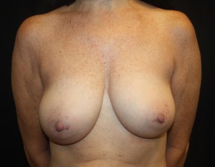 Breast Lift Before & After Patient #27729