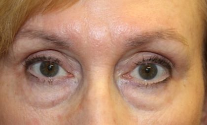 Blepharoplasty Before & After Patient #27740