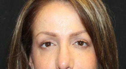 Botox and Dysport Before & After Patient #27760