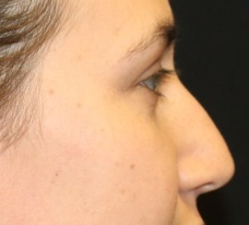 Rhinoplasty Before & After Patient #27769