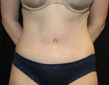 Tummy Tuck Before & After Patient #27960