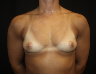 Breast Augmentation - Round Silicone Implants Before & After Patient #28040