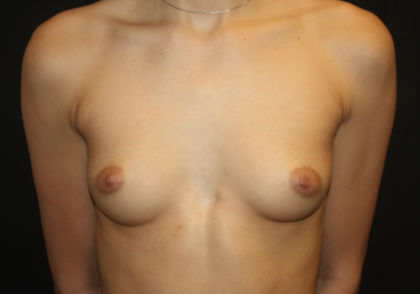 Breast Augmentation - Round Silicone Implants Before & After Patient #28138