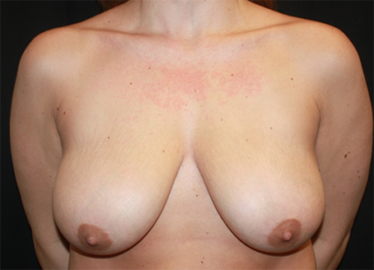 Breast Lift Before & After Patient #28145
