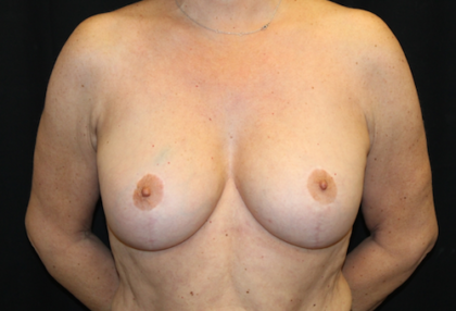 Breast Lift Before & After Patient #28156