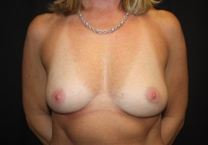 Breast Augmentation - Round Silicone Implants Before & After Patient #28167