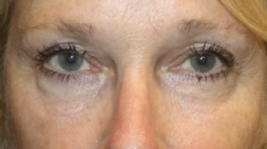 Blepharoplasty Before & After Patient #27972