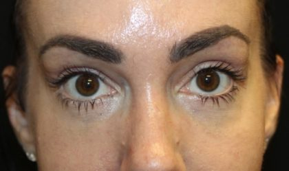 Blepharoplasty Before & After Patient #28126