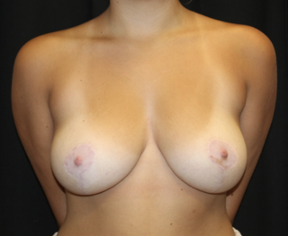Breast Reduction Before & After Patient #28062