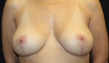 Breast Reduction Before & After Patient #27991