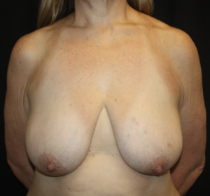 Breast Reduction Before & After Patient #28080