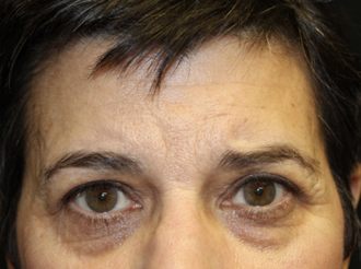 Brow Lift Before & After Patient #28095