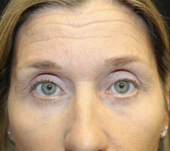 Blepharoplasty Before & After Patient #27855