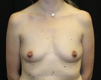 Breast Augmentation - Round Silicone Implants Before & After Patient #27876