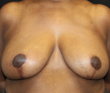 Breast Reduction Before & After Patient #27898