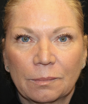 Injectable Fillers Before & After Patient #28002