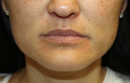 Injectable Fillers Before & After Patient #28191