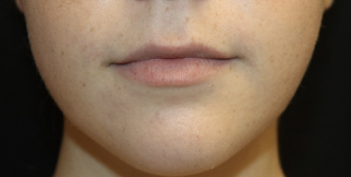 Lip Augmentation Before & After Patient #27909