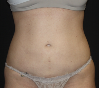 Liposuction Before & After Patient #28106