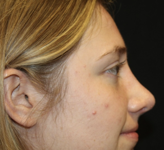 Rhinoplasty Before & After Patient #28007