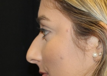 Rhinoplasty Before & After Patient #28207