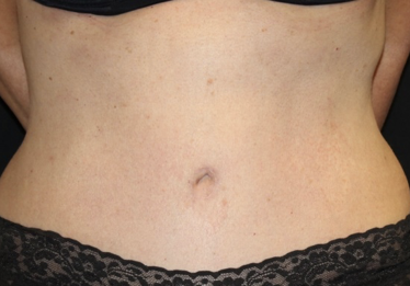 Tummy Tuck Before & After Patient #28029